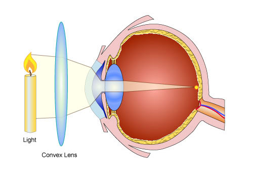 Use of lenses for correcting vision pass my exams easy exam this defect can be corrected by wearing a convex converging spectacle lens the rays of light from a near object are converged before entering the eye so ccuart Gallery